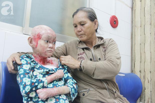 Bà Lệ cho biết nếu có điều kiện sẽ cho Dương qua nước ngoài chữa trị.