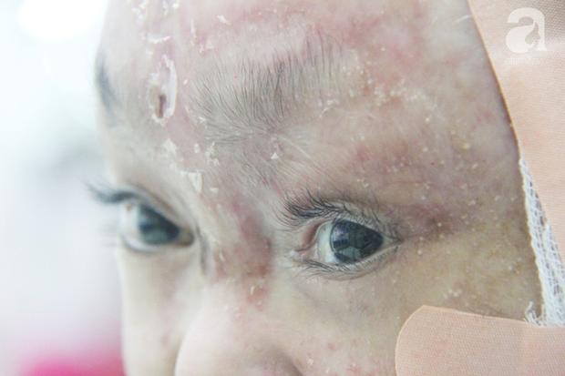 Cô gái 21 tuổi mắc phải căn bệnh lạ, da bị bong tróc, rớm máu khắp cơ thể có đôi mắt đẹp, đượm buồn.