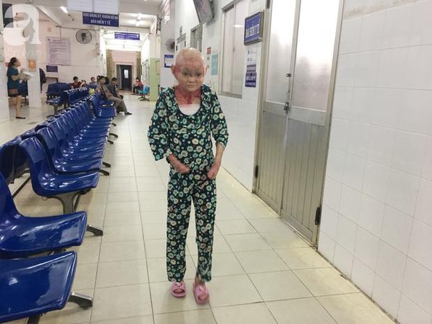 Suốt 3 năm nay, Dương lấy bệnh viện làm nhà khi liên tục ra vào để chữa trị.