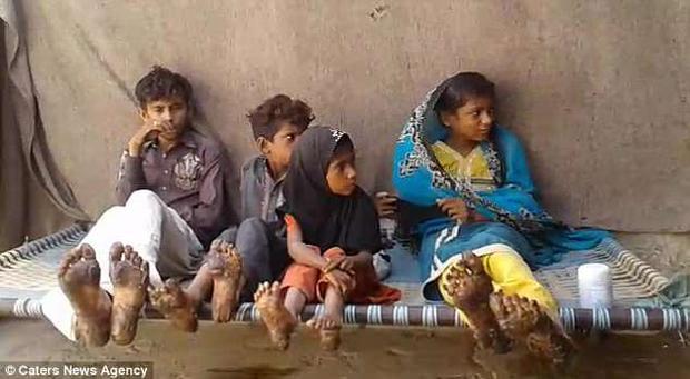 4 đứa con của anh Nazir mắc bệnh tăng sừng ly thượng bì.