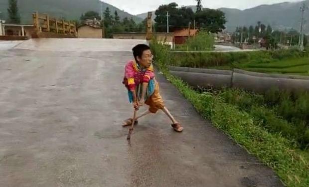 Nghị lực của người đàn ông mất cả chân lẫn tay khiến nhiều người phải cúi đầu xấu hổ