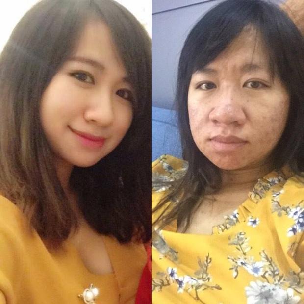 Ảnh trước và khi mang bầu của người mẹ trẻ.