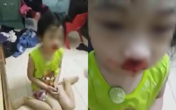 Hình ảnh bé gái có vết giống máu trên mũi.