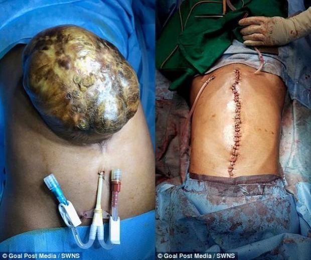 Túi nội tạng bên ngoài cơ thể của cô gái 19 tuổi. Ảnh: SWNS