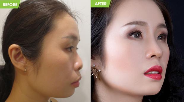 Kết quả thực tế sau khi nâng mũi của Việt Trang khiến nhiều người ngỡ ngàng vì vẻ đẹp sắc sảo.