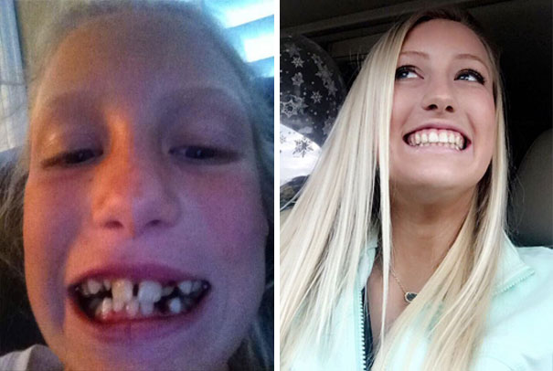 Nhờ niềng răng, cô bé lọ lem răng hô ngày nào hóa thành thiên thần vạn người mê