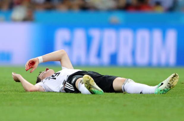 Cụ thể, ở phút 24, ngôi sao thuộc biên chế Bayern Munich đã bị chảy máu mũi rất nhiều do lãnh trọn cú đá của tiền đạo Ola Toivonen bên phía đội bạn.