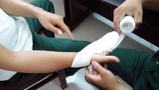 Trong quá trình làm nhiệm vụ bảo vệ an ninh trật tự vào đầu tháng 6 đã bị thương ở bàn tay phải, không thể cầm bút. Ảnh minh họa.