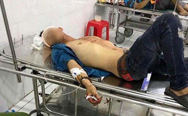 Các nạn nhân được đưa vào bệnh viện cấp cứu. Ảnh: Kiến Thức.