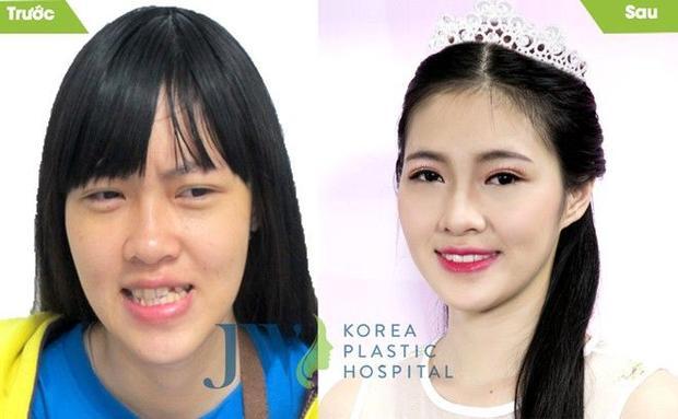 Hồng Anh - Cô gái bị hàm móm nặng đã được phẫu thuật thành công.