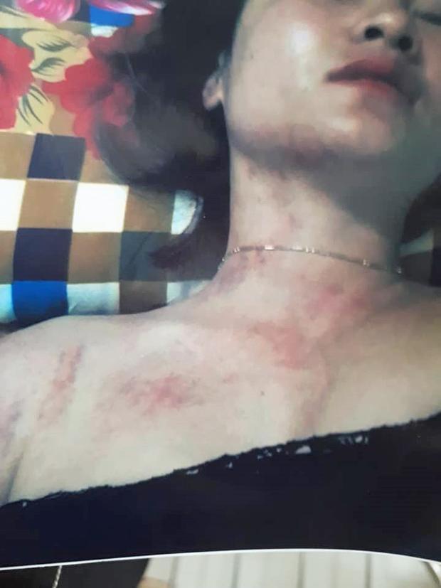 Những hình ảnh mà chị L.A đăng tải trên FB, cho rằng đây là vết thương do bị chồng đánh.