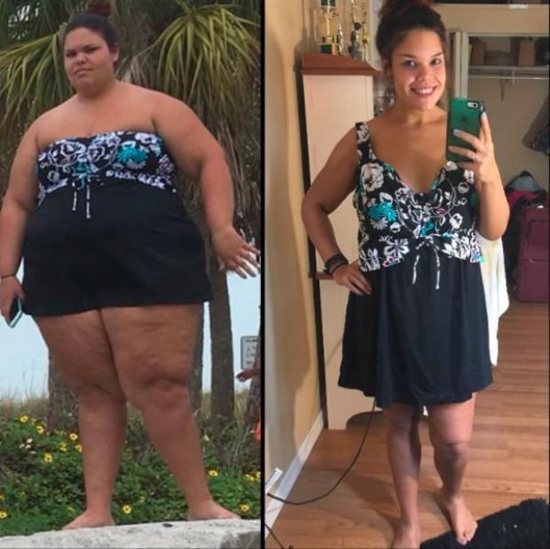 Sự thay đổi ngoạn mục của Jessica Beniquez từ 145kg đến 65kg.