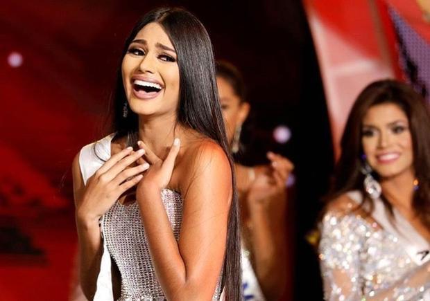 Venezuela:Người bắn phát súng đầu tiên cho trào lưu này là Sthefany Gutiérrez - Hoa hậu Venezuela 2017 - đại diện Venezuela tại Miss Universe 2018. Có lẽ ngoài gương mặt xinh khỏi bàn cãi thì mái tóc óng ả, đen tuyền chính là điểm giúp nhan sắc này tạo ấn tượng mạnh.