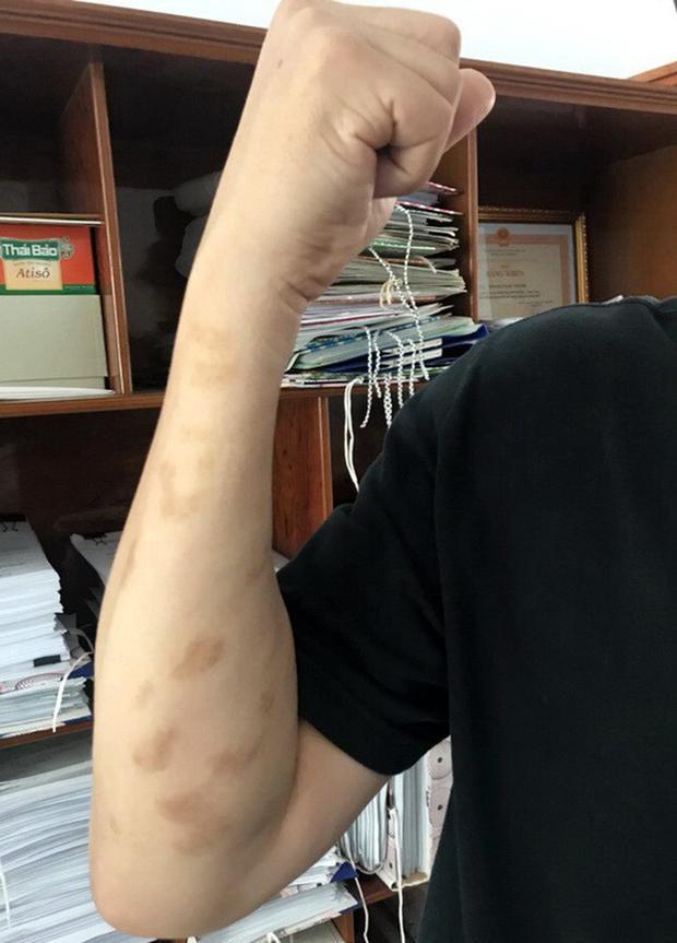 Vết thương do sứa lửa gây ra vẫn để lại sẹo sau 2 năm.
