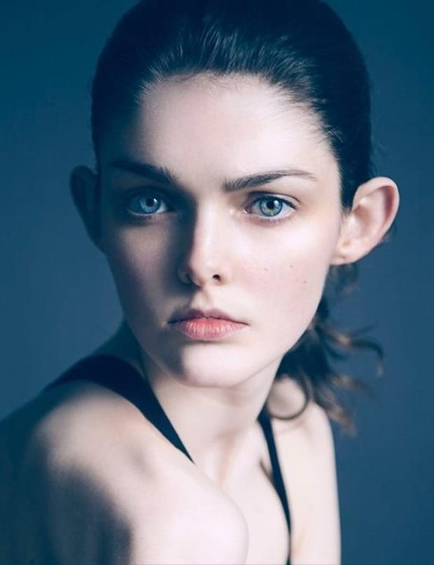 """Sở hữu đôi tai dơi to """"quá khổ"""", Laura O'Grady là chân dài đến từ xứ sở Ireland, cô được giới mộ điệu biết tới khi góp mặt trong Tuần lễ thời trang London và là gương mặt mở màn cho bộ sưu tập của nhà thiết kếquốc tế Bora Aksu. Cô kí hợp đồng với công tyquản lý mẫu Distinct Model Management của Anne Morgan."""