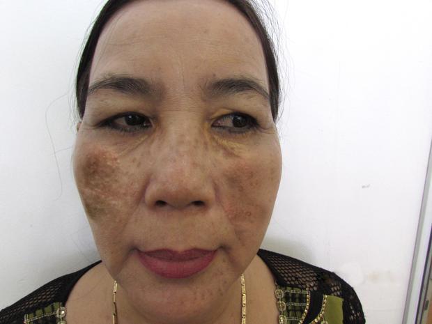 Gương mặt nám nặng khiến cô Trần Thị Kim Cúc mặc cảm suốt 20 năm và không dám đi ra ngoài.