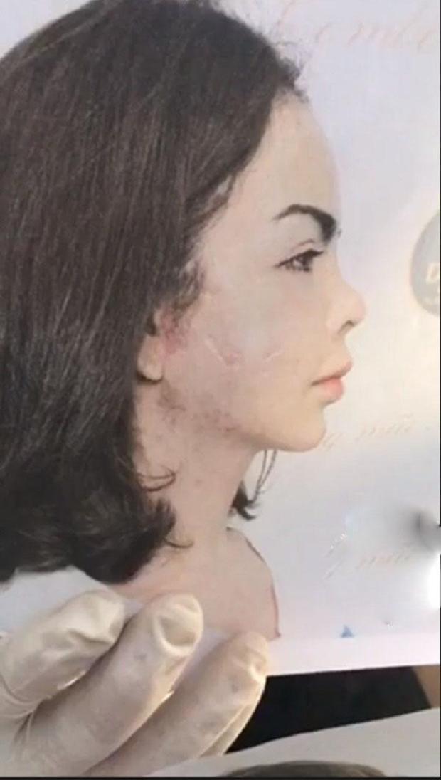 Hình chụp khuôn mặt của Linda trước khi phẫu thuật nâng mũi. Sau 6 lần chỉnh sửa chiếc mũi của cô đã co rút nhiều và rất ngắn.