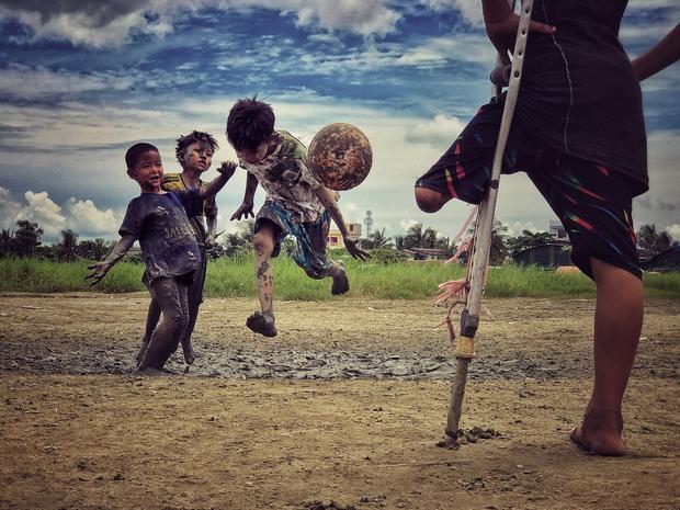 """Giải ba Nhiếp ảnh gia của năm - """"I want to play"""": Một cậu bé bị cụt chân xem bạn mình chơi đá bóng và cậu nói mình cũng muốn chơi nếu có thể. Chụp bằng iPhone 7 Plus. (Zarni Myo Win)"""