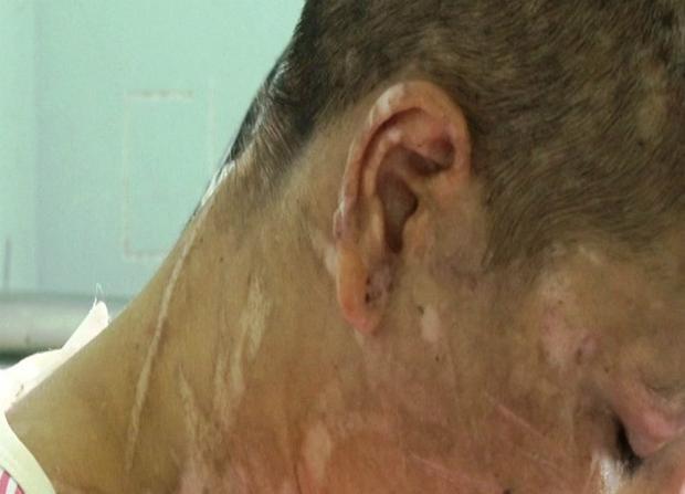 Thiếu nữ đi làm thuê nghi bị đánh đập dã man gây sẩy thai, mặt mũi biến dạng đến mẹ đẻ còn phải hỏi mày là ai