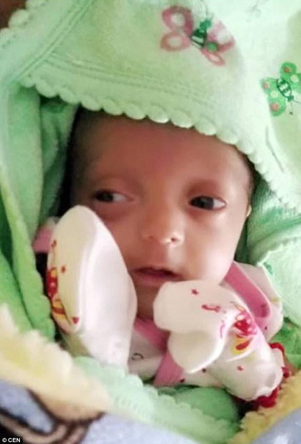 Hiện bé Cherry đã nặng 2 kg và được về nhà sau 4 tháng.