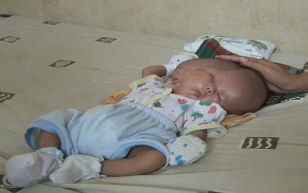 Gilang Andika sinh ra với hai khuôn mặt, hai bộ não nhưng chỉ với một cơ thể. Ảnh Dailymail.