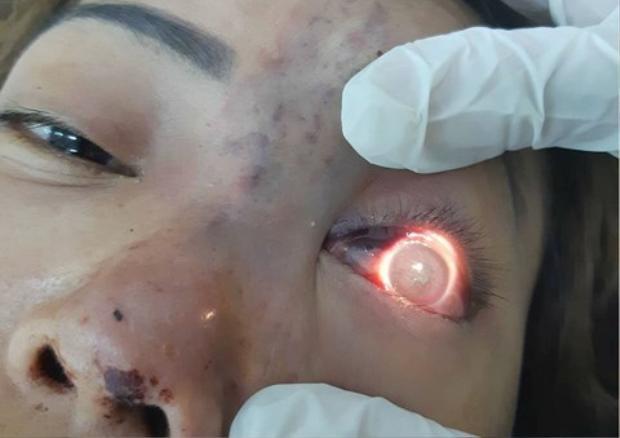 Chị D. bị mất thị lực mắt trái sau khi tiêm filler nâng mũi tại cơ sở spa.