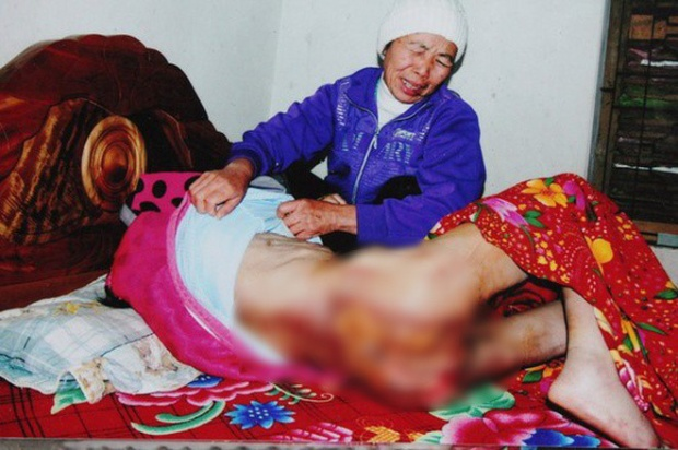 Bị nhà chủ bạo hành và không đưa đi chữa trị, vết bỏng ở bụng và vùng kín của bà Phương càng thêm trở nặng.