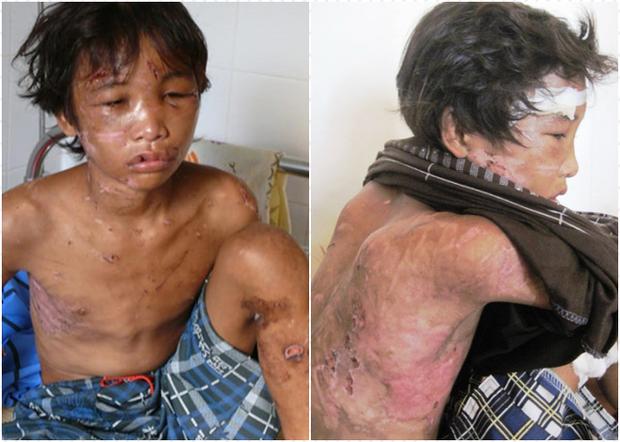 Cậu bé Hào Anh được phát hiện trong tình trạng có nhiều thương tích nghiêm trọng trên cơ thể.