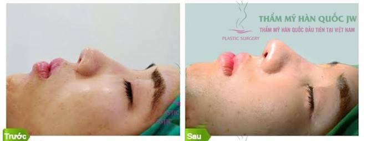 Bác sĩ tiết lộ quy trình nâng mũi S Line