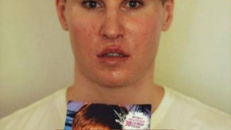 Toby Sheldon - nhạc sĩ phẫu thuật gương mặt để giống Justin Bieber.