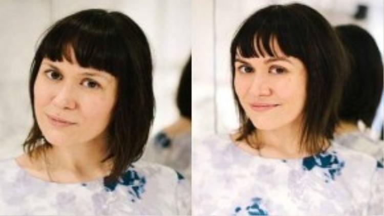 Lông mày trước (ảnh trái) và sau khi được nối (ảnh phải)