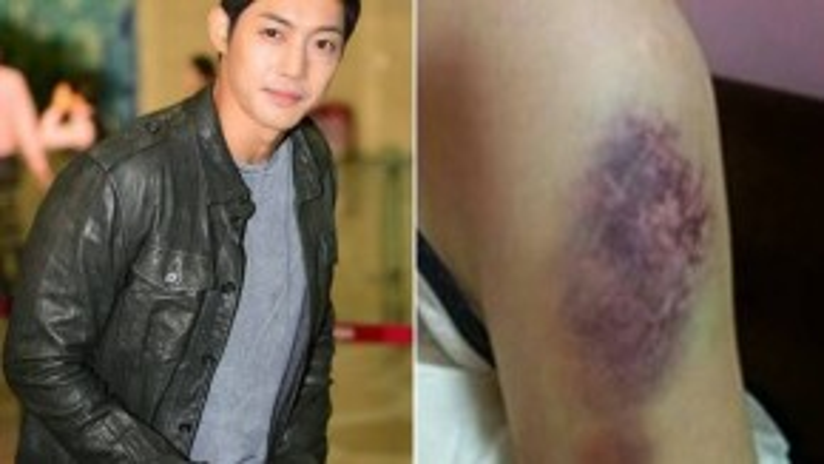 Một trong những bằng chứng Choi đưa ra cáo buộc bị Kim Hyun Joong đánh đập.