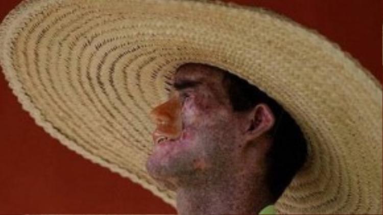 Hàng ngày, Jardim đội mũ rộng vành nhưng nó chỉ giúp anh ở ngoài trời trong thời gian ngắn.