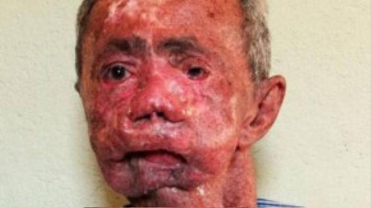 Theo Viện Ung thư Quốc gia Mỹ, ngoài tổn thương da, bệnh nhân co thể điếc, co cứng cơ và chậm phát triển.