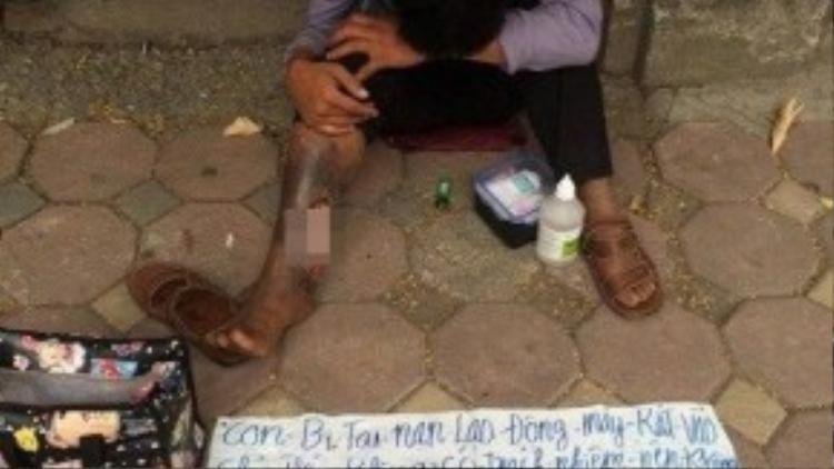 Gã thanh niên chân hoại tử xuất hiện trên khắp các nẻo đường.