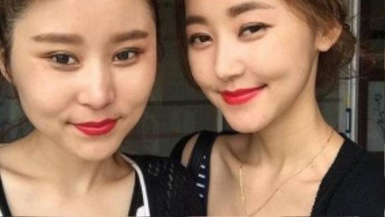 Ở Seoul, Yeonmi đã đoàn tụ cùng chị gái và theo học đại học. Cô bắt đầu tham gia hoạt động ủng hộ nhân quyền phản đối chế độ Bắc Triều Tiên.