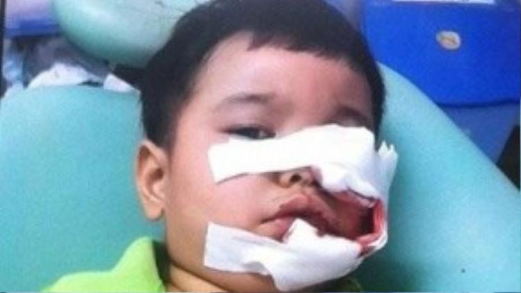 Bé 3 tuổi bị chó Phú Quốc cắn phải khâu 200 mũi trên mặt