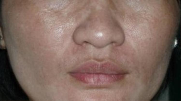 Sử dụng Aspirin không đúng cách có thể khiến da bạn bị nám, dẫn đến ưng thư da.