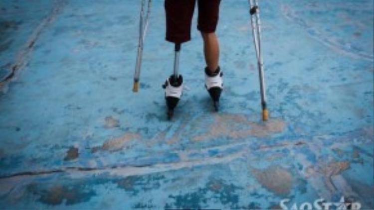Bảo may mắn được giúp đỡ lắp chân giả.