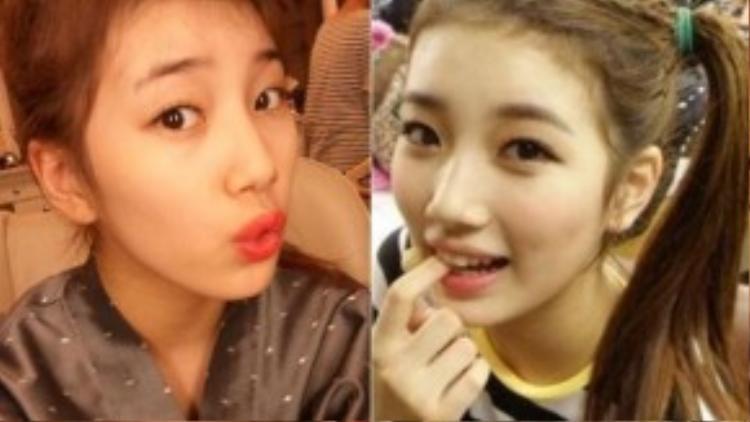 Bạn gái Lee Min Ho - Suzy không ưa đường nếp nhăn trên trán và tóc tơ quá nhiều.