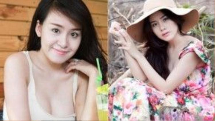 """""""Hiện tượng mạng"""" Bà Tưng từng gây sốc khi đăng tải ảnh gương mặt bị sung húp và băng bó sau khi phẫu thuật thẩm mỹ hồi tháng 9/2013."""