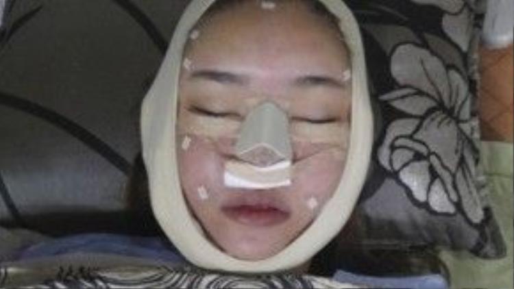 Lý giải cho sự thay đổi đột ngột này, cô cho biết do mình uống thuốc ngủ quá liều nên gây ra tình trạng sưng mặt.