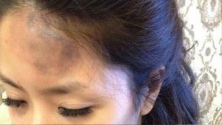 Hình ảnh nạn nhân bị thương tích được cho là do Quế Vân và Hồng Quế gây ra.