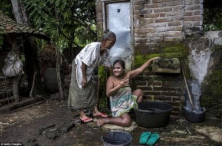 Sati (39 tuổi) mắc hội chứng Down đang được mẹ giúp tắm rửa.
