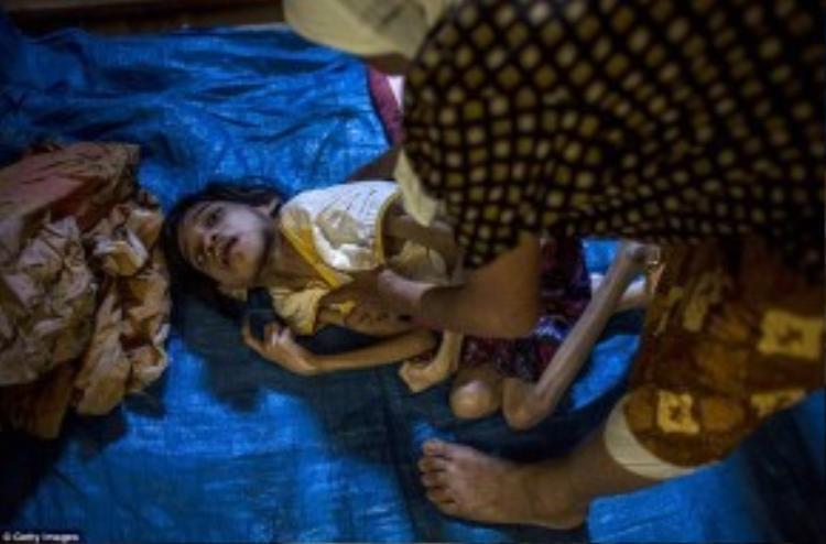 Cô bé 13 tuổi Jamila bị mắc chứng Down đang nằm vật vã trên một tấm bạt trải tạm bợ trên sàn nhà.
