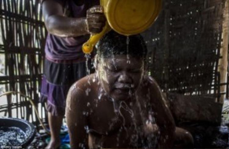Andika (17 tuổi) bị hội chứng Down đang được mẹ Supini giúp đỡ tắm rửa.