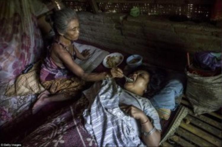 Cô Sijum (40 tuổi) bị hội chứng Down đang nằm bất động trên giường chờ mẹ đút cho ăn.