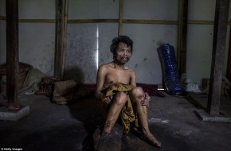 Anh Saimun (45 tuổi), mắc bệnh tâm thần, đang ngồi trong nhà, nơi đôi chân anh đã bị xích trong 20 năm bởi chính cha mẹ mình.