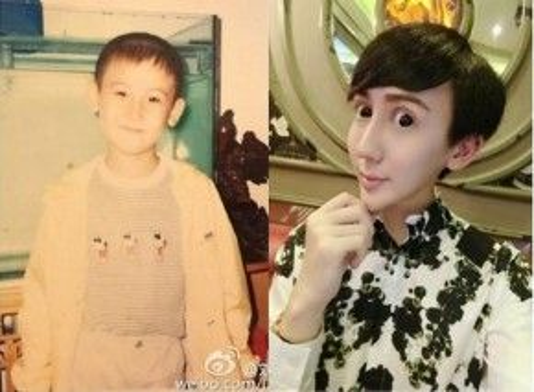 Gương mặt hoàn toàn khác với lúc nhỏ nhưng Liu vẫn khẳng định vẻ đẹp của mình là tự nhiên nhờ mang dòng máu lai Trung- Mỹ.