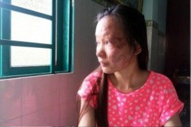 Những nạn nhân bị tạt axit luôn phải chịu những di chứng đau đớn suốt đời.